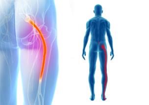 坐骨神経痛‐原因