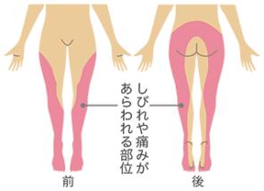 坐骨神経痛‐三重県